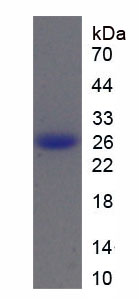 Recombinant Cathepsin B (CTSB)
