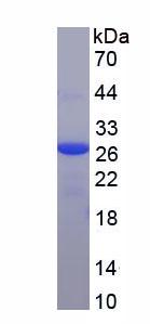 Recombinant Ferritin, Heavy Polypeptide (FTH)