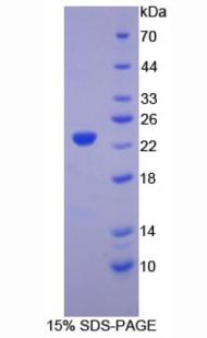 Recombinant Hemoglobin Beta (HBb)