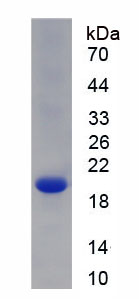 Recombinant Collagen Type VIII Alpha 2 (COL8a2)
