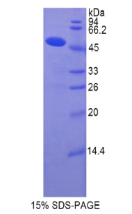 Recombinant Collagen Type XIV (COL14)