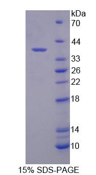 Recombinant Syntenin 2 (ST2)