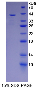 Recombinant Paraoxonase 2 (PON2)