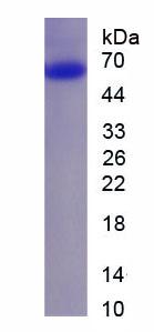 Recombinant Sequestosome 1 (SQSTM1)