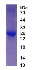Recombinant Troponin I Type 2, Fast Skeletal (TNNI2)