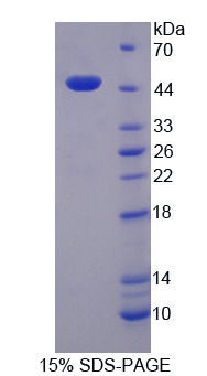 Recombinant Cytochrome P450 Reductase (CPR)