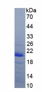 Recombinant Calmodulin 1 (CALM1)