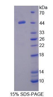 Recombinant Protein C Inhibitor (PCI)