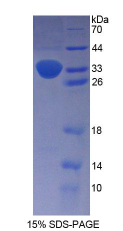 Recombinant Proenkephalin (PENK)