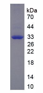 Recombinant Myosin Heavy Chain 3, Skeletal Muscle, Embryonic (MYH3)