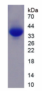 Recombinant Myosin Heavy Chain 6, Cardiac Muscle, Alpha (MYH6)