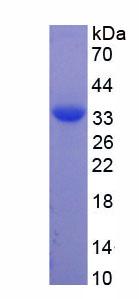 Recombinant Tropomyosin 3 (TPM3)