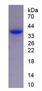 Recombinant Hypoxia Inducible Factor 2 Alpha (HIF2a)