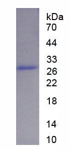 Recombinant Mitogen Activated Protein Kinase Kinase Kinase 12 (MAP3K12)