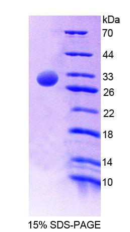Recombinant Protein Tyrosine Phosphatase, Non Receptor Type 5 (PTPN5)