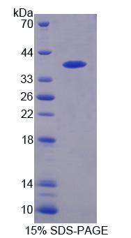 Recombinant Protein Tyrosine Phosphatase, Non Receptor Type 9 (PTPN9)