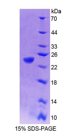 Recombinant Protein Tyrosine Phosphatase Type IVA 1 (PTP4A1)