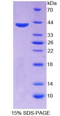 Recombinant ATP Binding Cassette Transporter A4 (ABCA4)