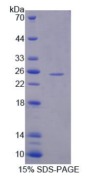 Recombinant Hydroxymethylglutaryl Coenzyme A Synthase 2, Mitochondrial (HMGCS2)
