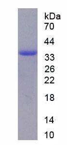Recombinant Arginase II (Arg2)