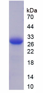 Recombinant Thrombospondin 2 (THBS2)