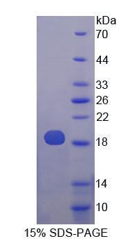 Recombinant Phospholipase A2, Group X (PLA2G10)