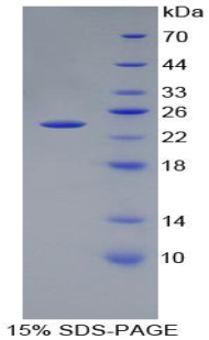 Recombinant Peptidoglycan Recognition Protein 1 (PGLYRP1)