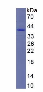 Recombinant 5'-Nucleotidase, Cytosolic III (NT5C3)