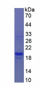 Recombinant Procollagen C Proteinase Enhancer 2 (PCPE2)
