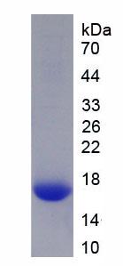 Recombinant Neurofilament, Heavy Polypeptide (NEFH)