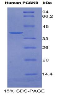 Recombinant Proprotein Convertase Subtilisin/Kexin Type 9 (PCSK9)