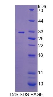 Recombinant C-Mer Proto Oncogene Tyrosine Kinase (MERTK)