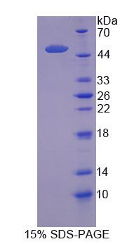 Recombinant Solute Carrier Family 1, Member 5 (SLC1A5)