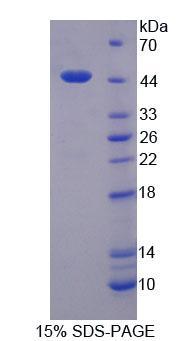 Recombinant Lemur Tyrosine Kinase 3 (LMTK3)