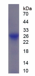 Recombinant Alpha-1-B-Glycoprotein (a1BG)