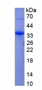 Recombinant Alpha-1-B-Glycoprotein (a1BG)