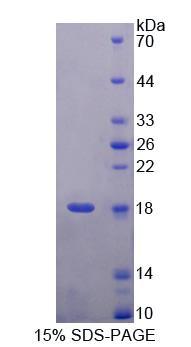 Recombinant Ubiquitin A 52 Residue Ribosomal Protein Fusion Product 1 (UBA52)