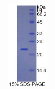 Recombinant Cyclin Dependent Kinase Inhibitor 1A (CDKN1A)