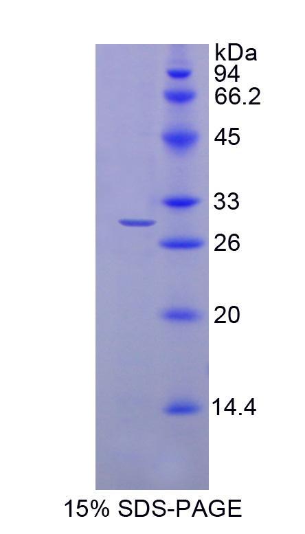 Recombinant N-Acylethanolamine Acid Amidase (NAAA)