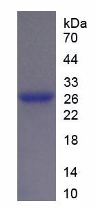 Recombinant Tubulin Beta 1 (TUBb1)
