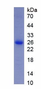 Recombinant Filamin C Gamma (FLNC)