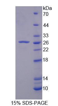 Recombinant Ubiquitin Specific Peptidase 2 (USP2)
