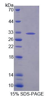 Recombinant Beta-1,3-Glucuronyltransferase 2 (b3GAT2)