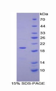 Recombinant Ectonucleotide Pyrophosphatase/Phosphodiesterase 1 (ENPP1)