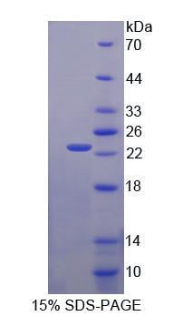 Recombinant Crystallin Beta B2 (CRYbB2)