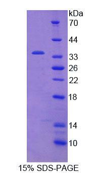 Recombinant Janus Kinase 2 (JAK2)