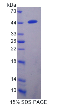 Recombinant Transmembrane Protease, Serine 4 (TMPRSS4)