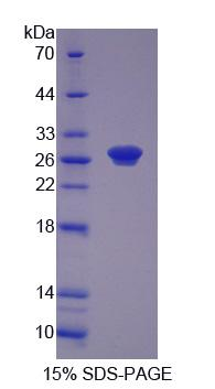Recombinant Ribonucleotide Reductase M1 (RRM1)