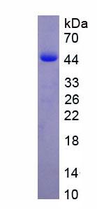 Recombinant Deiodinase, Iodothyronine, Type III (DIO3)