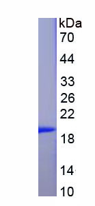 Recombinant Adenosine A2b Receptor (ADORA2b)